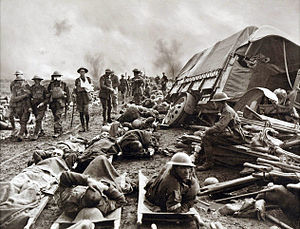 300px-Battle_of_Menin_Road_-_wounded_at_side_of_the_road